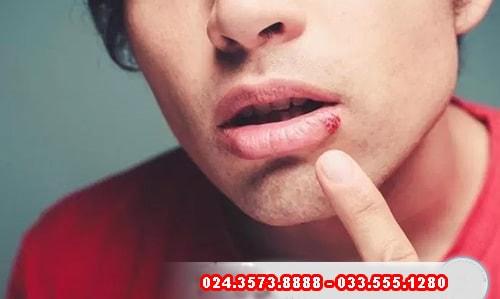 Bệnh lậu ở miệng có chữa được không